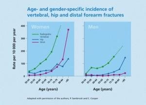 osteoporosi ed età