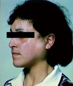 tumefazione delle ghiandole salivari
